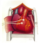 Heart diagram by Michael Reingold, second image